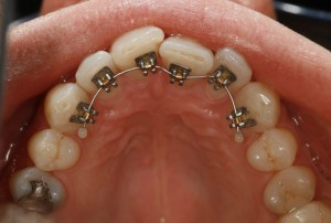 Secret Smile 2 -lingual brace in place invisibly behind teeth