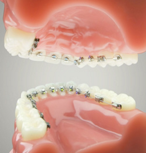 Quick Lingual 2D Braces in Carlisle
