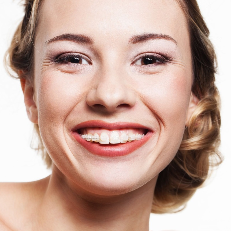 Clear Ceramic Cosmetic Braces in Carlisle from York Place Dental