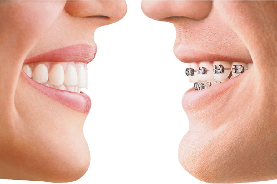 Invisalign braces in Carlisle from York Place Dental