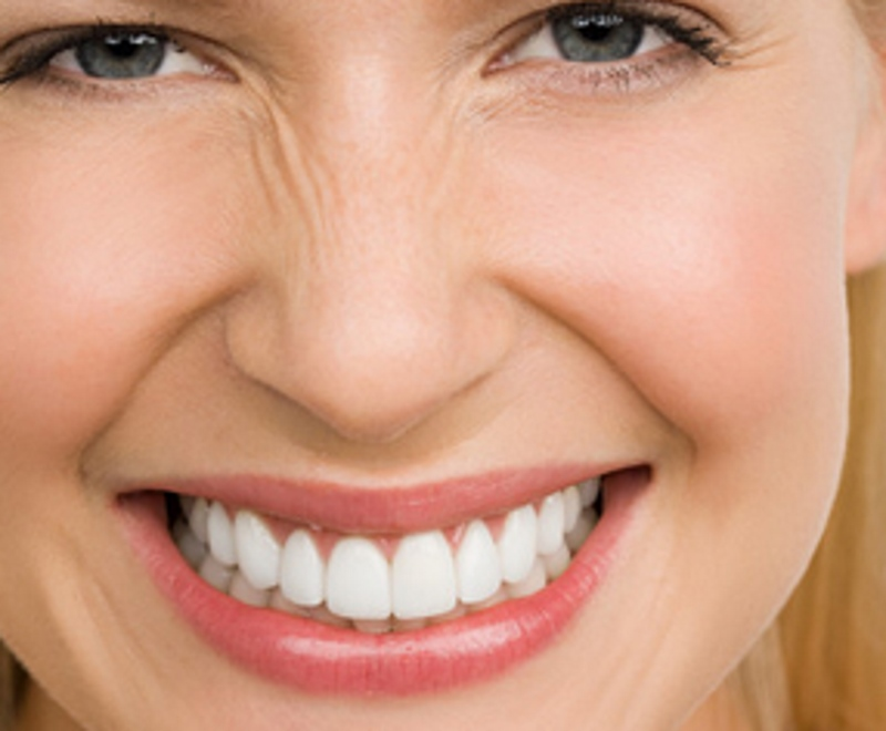 Teeth whitening in Carlisle