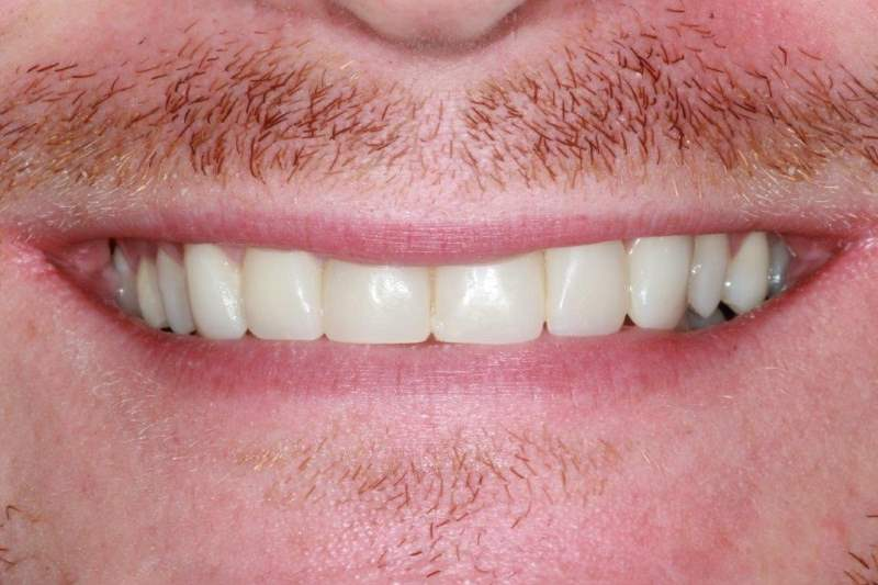 After Cosmetic Bonding Dental Treatment by York Place Dental