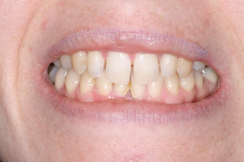 Before Cosmetic Bonding Dental Treatment by York Place Dental