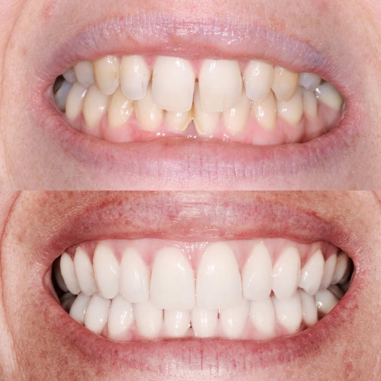 Cosmetic-Bonding-Before-After
