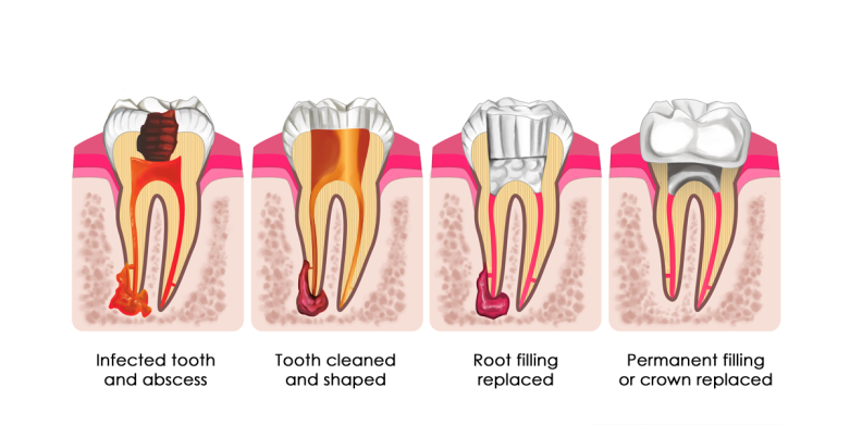 Root-Canal-Process-781x391